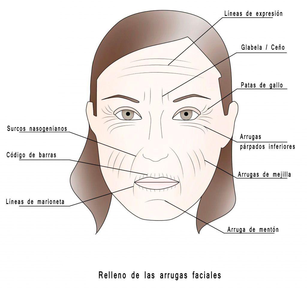 relleno-arrugas-faciales-acido-hialuronico clinica fidentzia