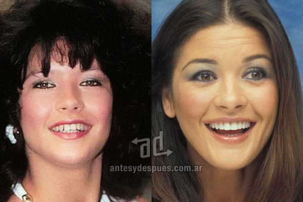 catherine-zeta-jones_dientes_antesydespues_fidentzia