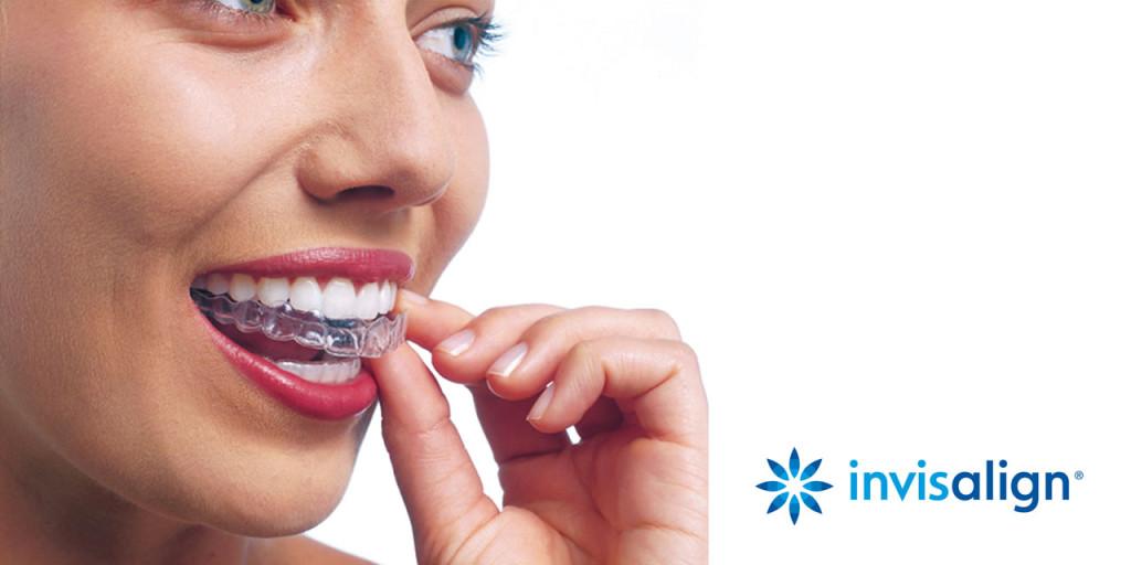 ortodoncia invisible Alicante invisalign
