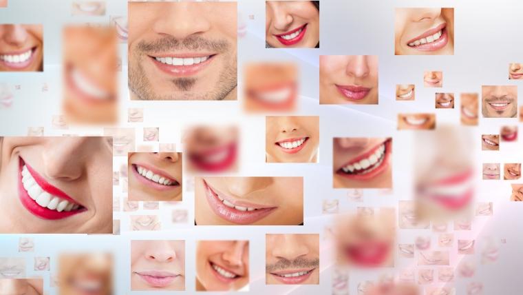 Invisalign en clínica dental Fidentzia
