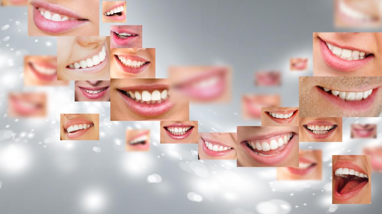 Smile Design y carillas de porcelana