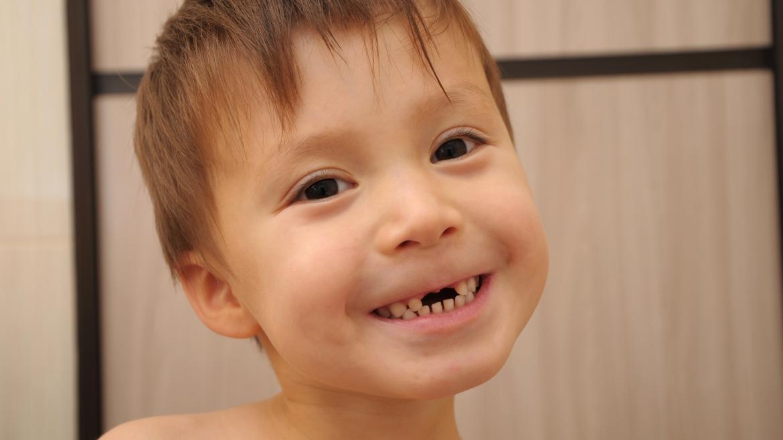 Creencia de los padres acerca de los dientes de leche