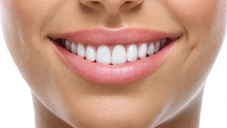 ¿Ortodoncia o carillas?