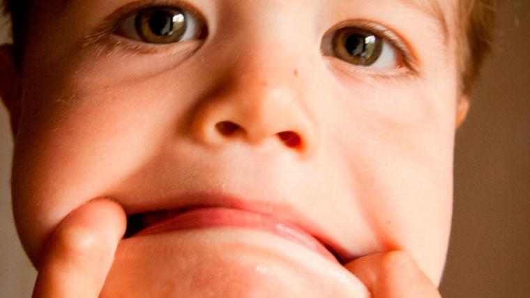 Pulpotomía, la endodoncia de los niños