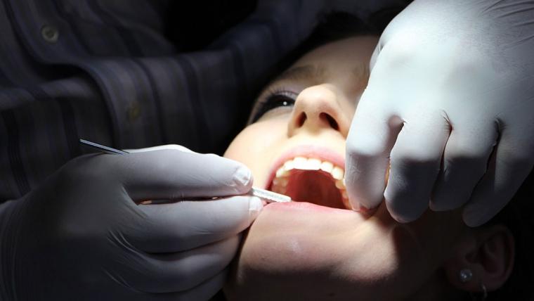 La revisión dental como método de prevención
