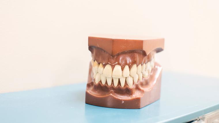 Causas y tipos de decoloración dental