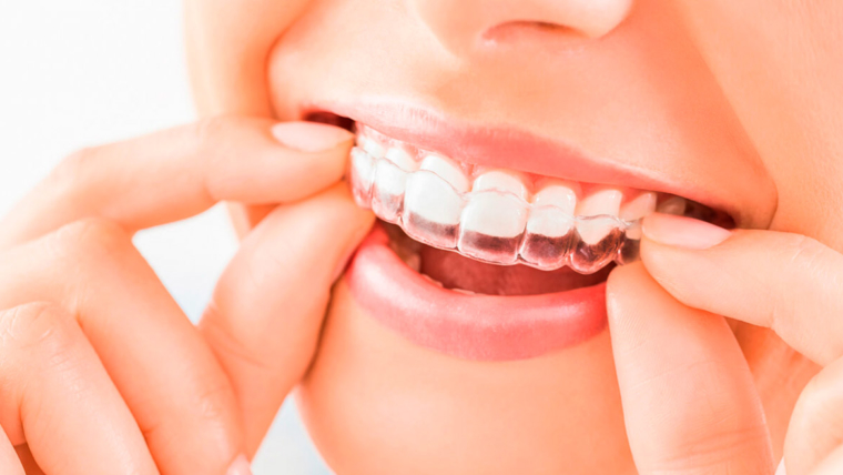 ¿Por qué optar por Invisalign, la ortodoncia invisible?