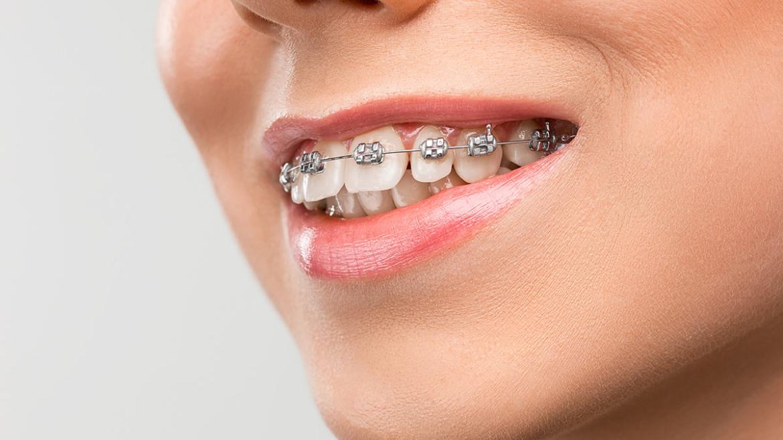 Cuidado de los dientes con la ortodoncia